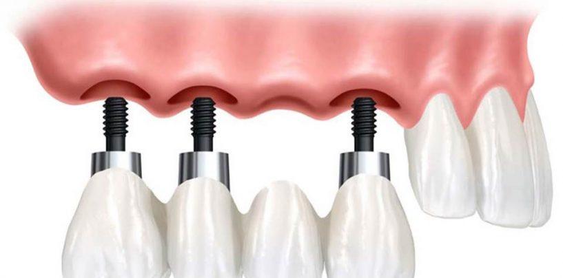 Mident Style: Implanturile scurte și reducerile lunii iulie